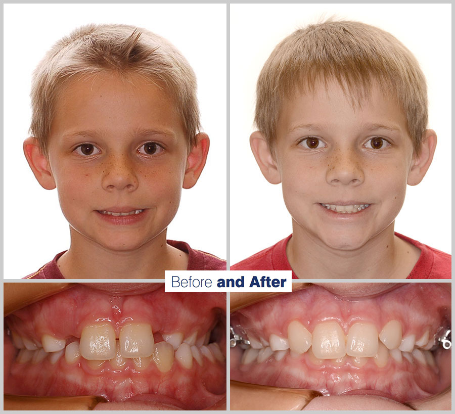 An image containing two headshots and two up close shots of the teeth, of a former PDS patient, displaying how much Orthodontic treatment can help.
