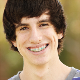 A teenage boy with braces, smiling